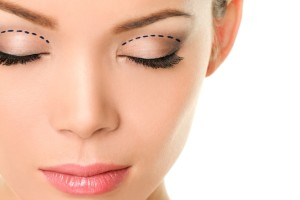 Eyelids plastic surgery concept - asian monolids